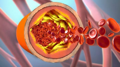 Does MCT Lower Cholesterol?