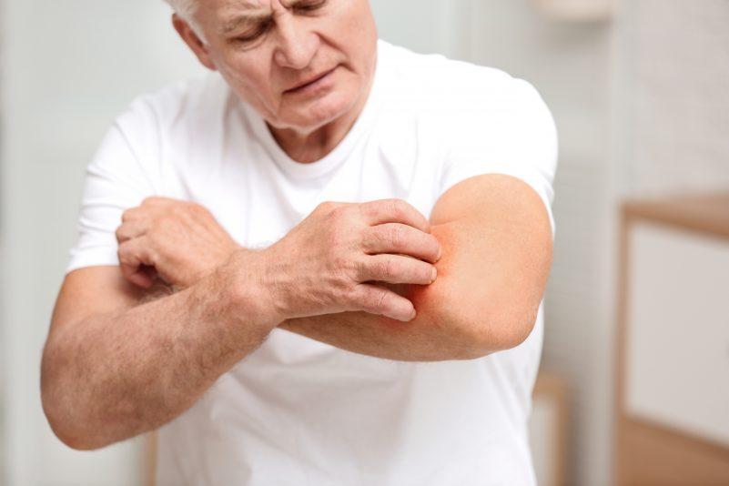 Is Your Rash a Symptom of COVID-19?